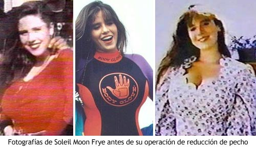 Punky Brewster - Soleil Moon Frye antes de la operación de reducción de pecho